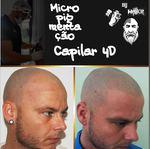 Micropigmentação Capilar foto 1